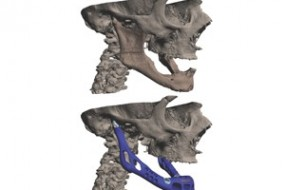 Another First For 3D Printing – Woman Receives Jaw Implant; health
