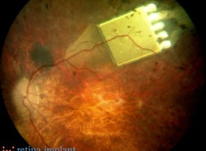 Retinal Implants Restore Partial Sight To Three Blind; Health