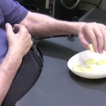 Paralyzed Man Regains Use Of Hands After Having Nerves Rewired
