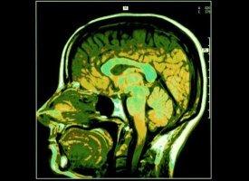 It Makes Your Brain Plastic; health