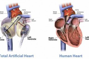 Extending People's Lives – One Artificial Heart At A Time; health