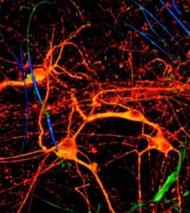 3-D nanowire scaffolds let researchers grow tissue around transistors