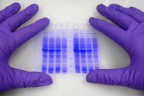 Bits of Mystery DNA, Far From 'Junk,' Play Crucial Role