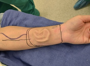 WOMAN'S EAR REGROWN IN HER FOREARM  Health