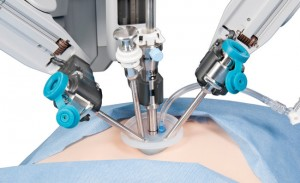 When Robotic Surgery Only Leaves Just a Scratch
