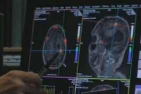 DOCTORS USE BRAIN SCANNER TO COMMUNICATE WITH 'VEGETATIVE' PATIENT