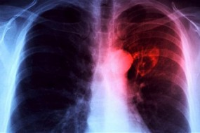 Heart repair with stem cells is 'biggest breakthrough in a generation'