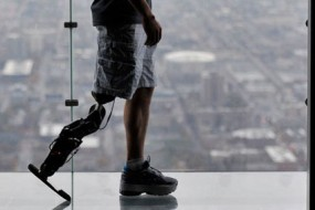 The-world's-first-mind-controlled-robotic-leg-is-ready-for-prime-time-awaken