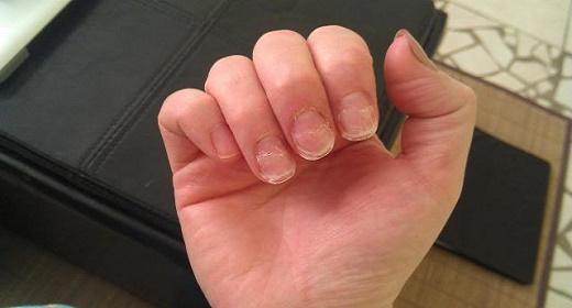 8 Health Warnings Your Fingernails May Be Sending | Awaken