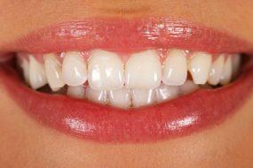 tooth-enamel-awaken